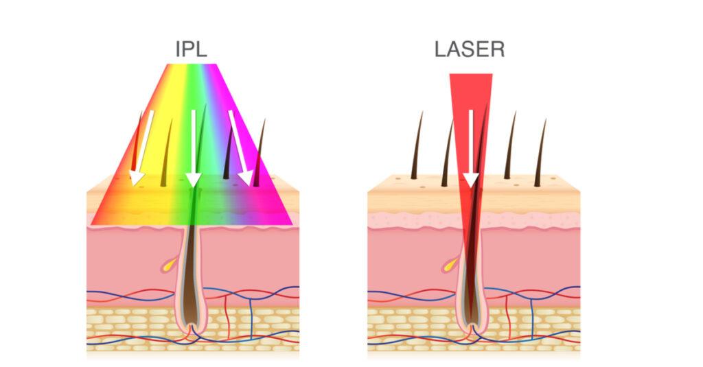 ipl hair removal laser