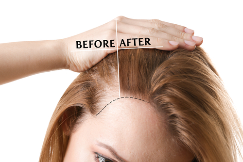 thin hair before and after