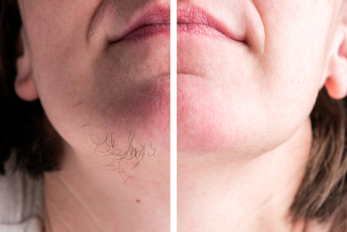 at home laser hair removal before and after