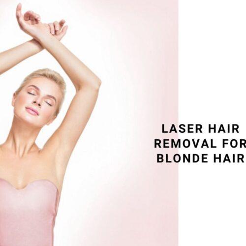 laser hair removal blonde hair