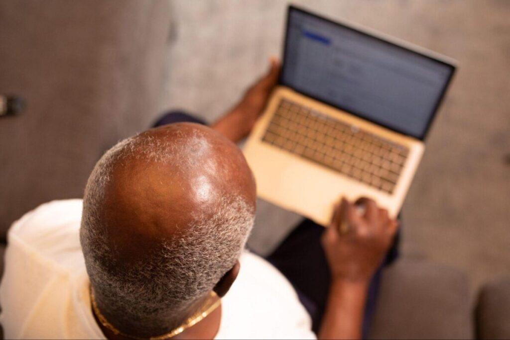 causes of balding in black men