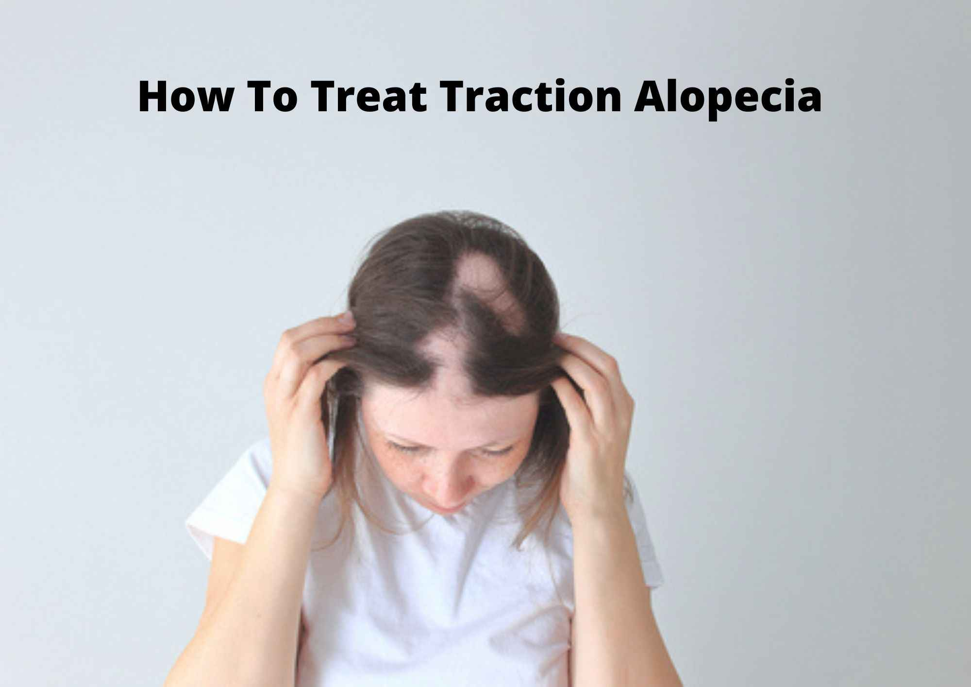 how to prevent traction alopecia