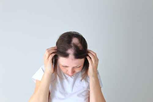 alopecia causes in females