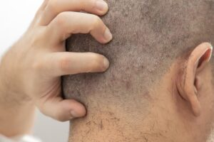 causes of scalp pain